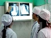 Despliegan en Vietnam programa contra brote de tuberculosis