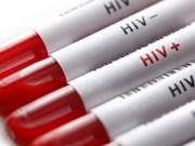 Vietnam por fomentar participación de organizaciones sociales en prevención de SIDA