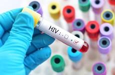 Unos mil 500 niños nacen con VIH cada año en Vietnam