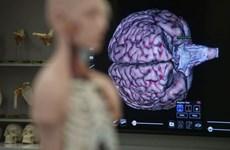 Lanza Singapur su primer banco de cerebros