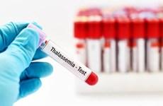Indonesia entre países con alta tasa de hemólisis congénita