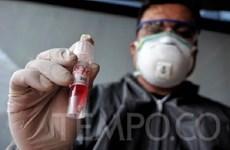 Indonesia comienza a fabricar kits de prueba rápida del COVID-19