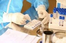 Vietnam suma 94 nuevos casos del COVID-19