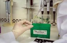 Alemania dona 160 mil kits de prueba de detección del COVID-19 a Vietnam