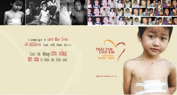 Vietnamitas en Rusia realizan programa caritativo a favor de ninos con enfermedades cardiacas hinh anh 1