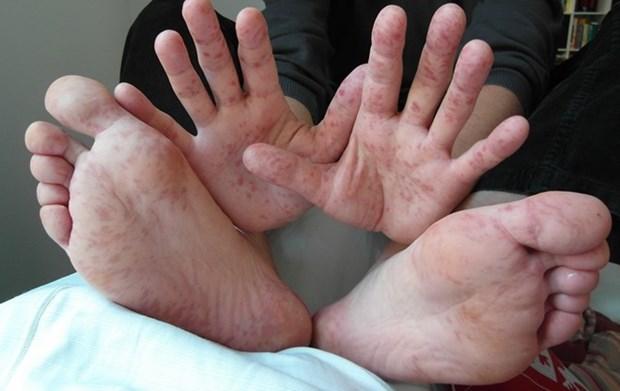 Vietnam advierte sobre riesgo de propagacion de fiebre aftosa humana hinh anh 1