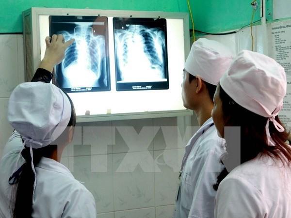 Despliegan en Vietnam programa contra brote de tuberculosis hinh anh 1