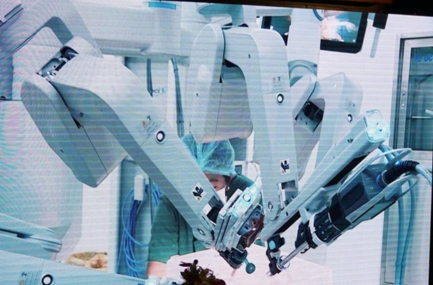 Vietnam registra tercer hospital con cirugia robotica para el cancer hinh anh 1