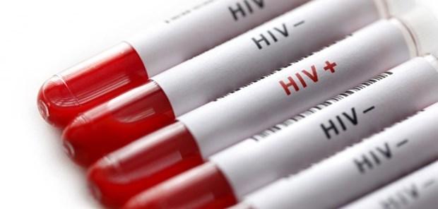 Vietnam por fomentar participacion de organizaciones sociales en prevencion de SIDA hinh anh 1