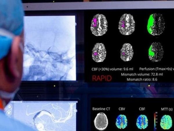 Aplican la inteligencia artificial en el diagnostico y tratamiento del ataque cerebral hinh anh 1