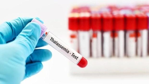 Indonesia entre paises con alta tasa de hemolisis congenita hinh anh 1