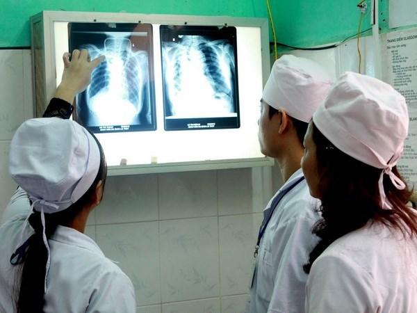 Vietnam con el mayor numero de pacientes con aspergilosis en el mundo hinh anh 1