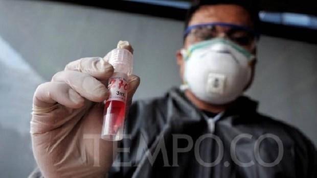 Indonesia comienza a fabricar kits de prueba rapida del COVID-19 hinh anh 1