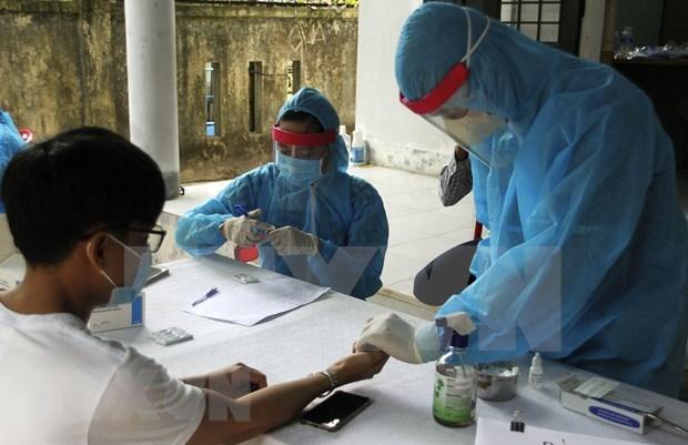 Reporta Vietnam 21 casos nuevos de COVID-19, suman 642 hinh anh 1