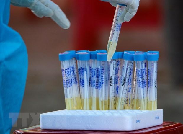 Fallecen en Vietnam otros dos casos del COVID-19 con enfermedades subyacentes graves hinh anh 1
