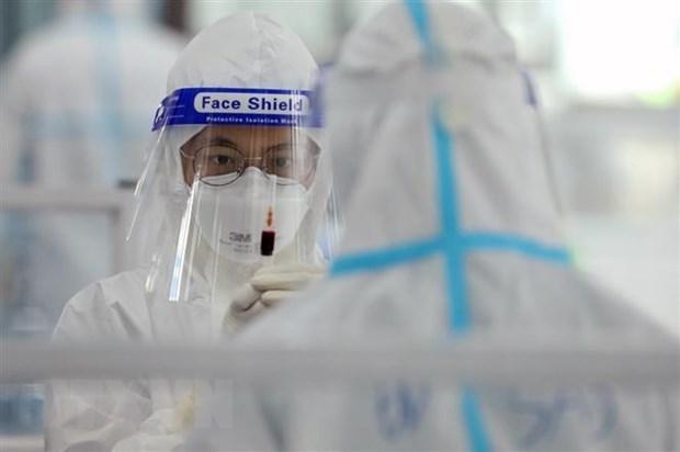 Reducen en Vietnam casos diarios del COVID-19 hinh anh 1
